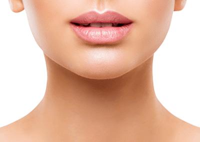 lip-fillers-resize